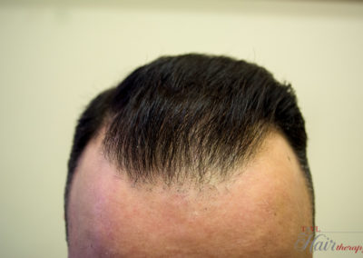 After-Tsvl Hair Therapy