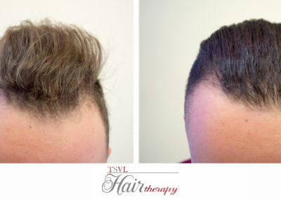 Before -After Tsvl Hair Therapy - 2