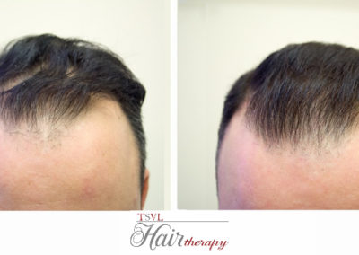 Before-After-Tsvl Hair Therapy
