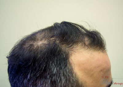 Before Tsvl Hair Therapy