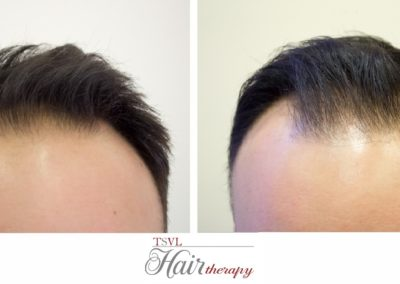 Before - AfterTsvl Hair Therapy