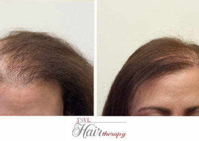 Before After Tsvl Hair Therapy